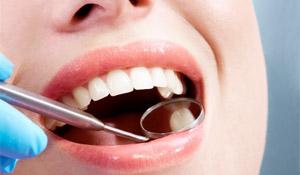 composite filling - calgary dentist