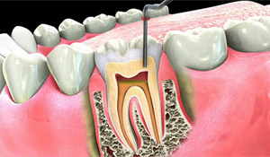 root canal treatment - calgary dentist