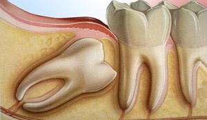 wisdom teeth exstraction - calgary dentist
